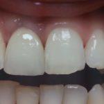 Dent à gauche : couronne sur implant