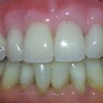 Prothèse amovible supérieure sur implants:fausse gencive, fausses dents, véritable diamant. Très belle réalisation odonto-technique par Yann Produit.Patiente de 30 ans? non, 59!