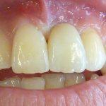 Remplacement de la dent perdue par une couronne sur un implant