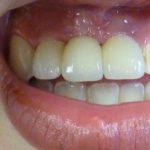 Situation finale: réhabilitation par implants