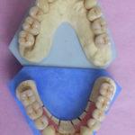 Travail soigneux sur modèles( laboratiore Rey-Mermet):doubles restaurations maxillaires complètes