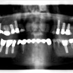 Implants pluriels, remplacement multiple par plusieurs implants sur 10 ans